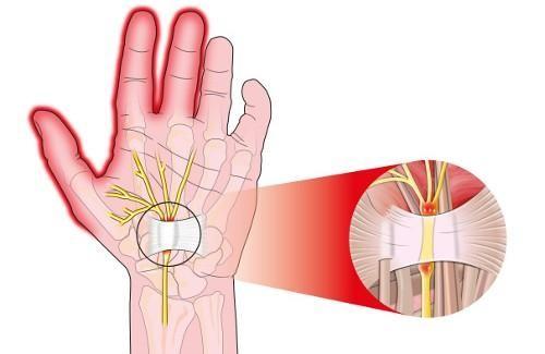 Sindrom karpalnega kanala